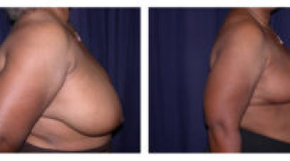 Before and After - Breast Reduction 11 - Side View