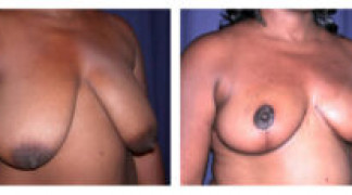 Before and After - Breast Reduction 12 - Profile