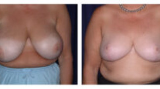 Before and After - Breast Reduction 14 - Front View