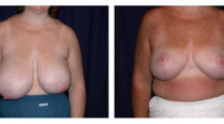 Before and After - Breast Reduction 15 - Front View
