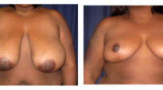 Before and After - Breast Reduction 17 - Front View