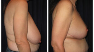 Before and After - Breast Reduction 20 - Profile