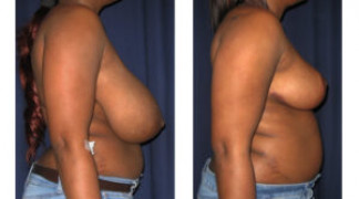 Before and After - Breast Reduction 21 - Side View