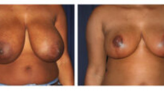 Before and After - Breast Reduction 22 - Front View