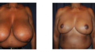Before and After - Breast Reduction 25 - Front View