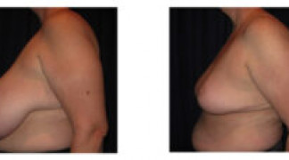 Before and After - Breast Reduction 27 - Profile