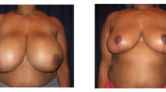 Before and After - Breast Reduction 28 - Front View