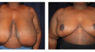 Before and After - Breast Reduction 29 - Front View