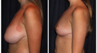 Before and After - Breast Reduction 30 - Profile