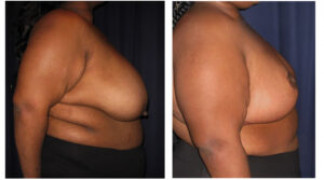 Before and After - Breast Reduction 31 - Profile