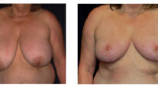 Before and After - Breast Reduction 35 - Front View