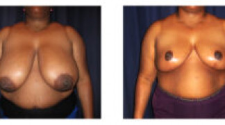 Before and After - Breast Reduction 32 - Front View