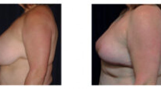Before and After - Breast Reduction 35 - Profile