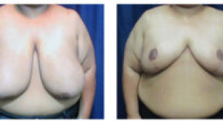 Before and After - Breast Reduction 30 - Front View