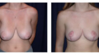 Before and After - Breast Reduction 4 - Front View