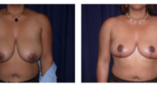 Before and After - Breast Reduction 5 - Front View