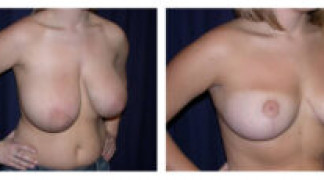 Before and After - Breast Reduction 9 - Profile