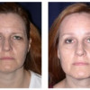 Before and After - Endoscopic Browlift 1 - Front View