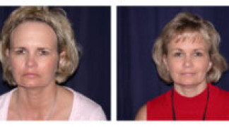 Before and After - Endoscopic Browlift 2 - Side View - Standing