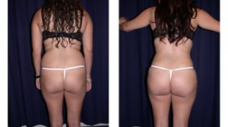 Brazilian Buttox Lift 2 - Back View