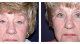 Before and After - Eyelid Ptosis 2 - Front View