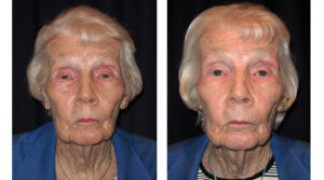 Before and After - Eyelid Ptosis 4 - Front View