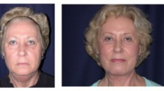 Before and After - Facial Rejuvenation 2 - Front View