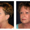 Before and After - Facial Rejuvenation 3 - Profile View
