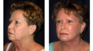 Before and After - Facial Rejuvenation 4 - Profile View