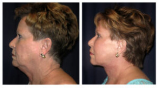 Before and After - Facial Rejuvenation 4 - Side View