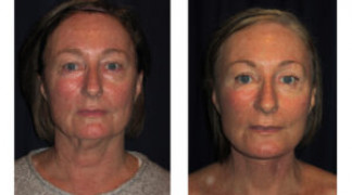 Before and After - Facial Rejuvenation 5 - Front View