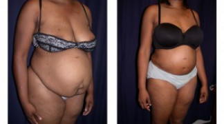 Lipo-Abdominoplasty 12 - Profile