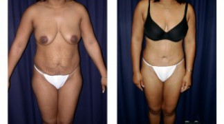 Lipo-Abdominoplasty 13 - Front View