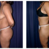 Lipo-Abdominoplasty 13 - Side View