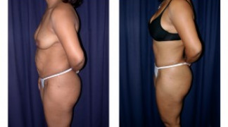 Lipo-Abdominoplasty 13 - Side View