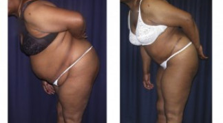 Lipo-Abdominoplasty 15 - Front View
