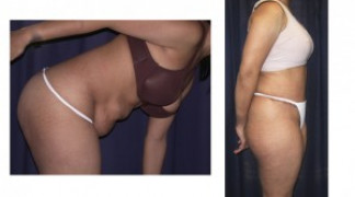Lipo-Abdominoplasty 16 - Side View