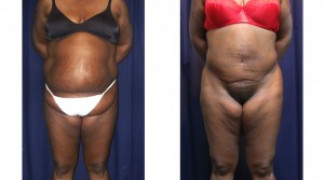 Lipo-Abdominoplasty 17 - Front View