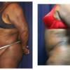 Lipo-Abdominoplasty 17 - Side View - Bending