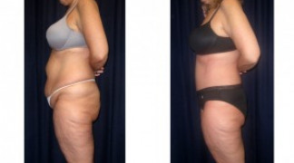 Lipo-Abdominoplasty 18 - Side View