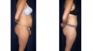 Lipo-Abdominoplasty 19 - Side View