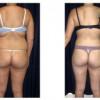 Lipo-Abdominoplasty 19 - Back View