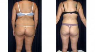Lipo-Abdominoplasty 19 - Back View