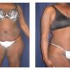 Lipo-Abdominoplasty 21 - Front View
