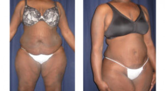 Lipo-Abdominoplasty 21 - Front View