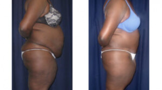 Lipo-Abdominoplasty 21 - Side View