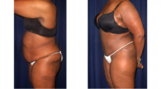 Lipo-Abdominoplasty 22 - Side View