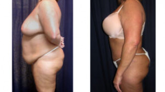 Lipo-Abdominoplasty 23 - Side View