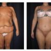 Lipo-Abdominoplasty 24 - Front View