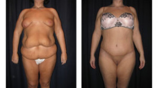 Lipo-Abdominoplasty 24 - Front View